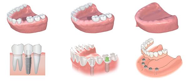 2b2-a-Implant-