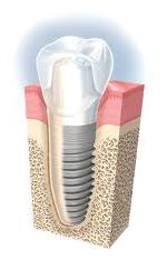 implant2b1