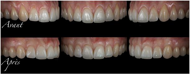 parodontite612
